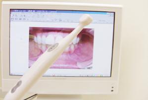 口腔内カメラで治療の経過を撮影